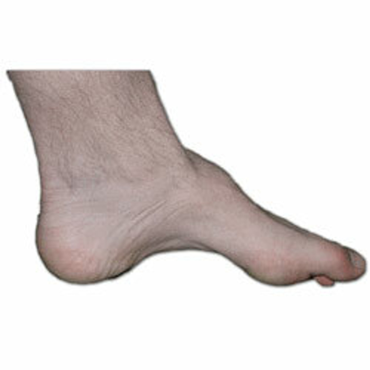 Charcot Foot Shoes | Shoe For Charcot Foot