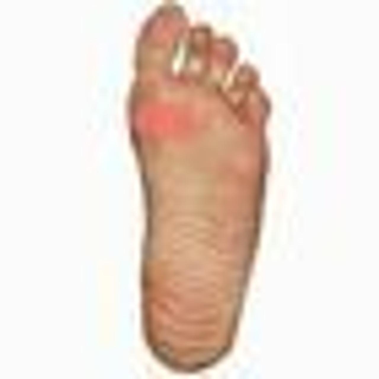 Shoes for Sesamoiditis | Sesamoiditis Footwear