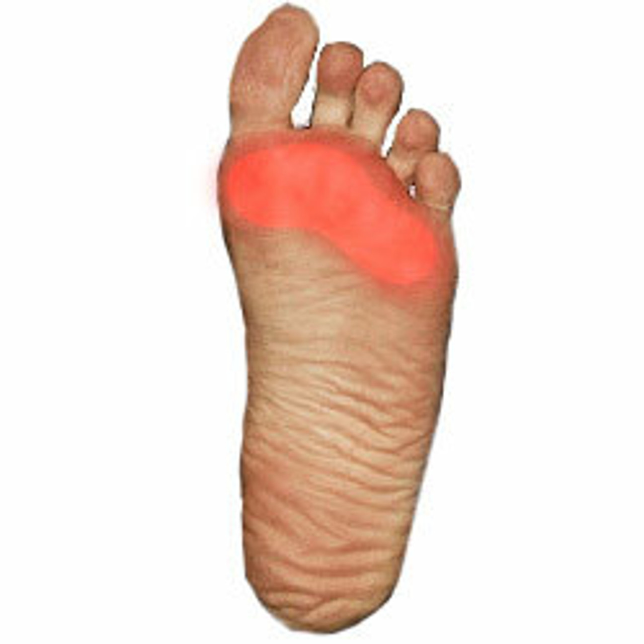 Shoes For Metatarsalgia   Ball Of Foot Pain Relief