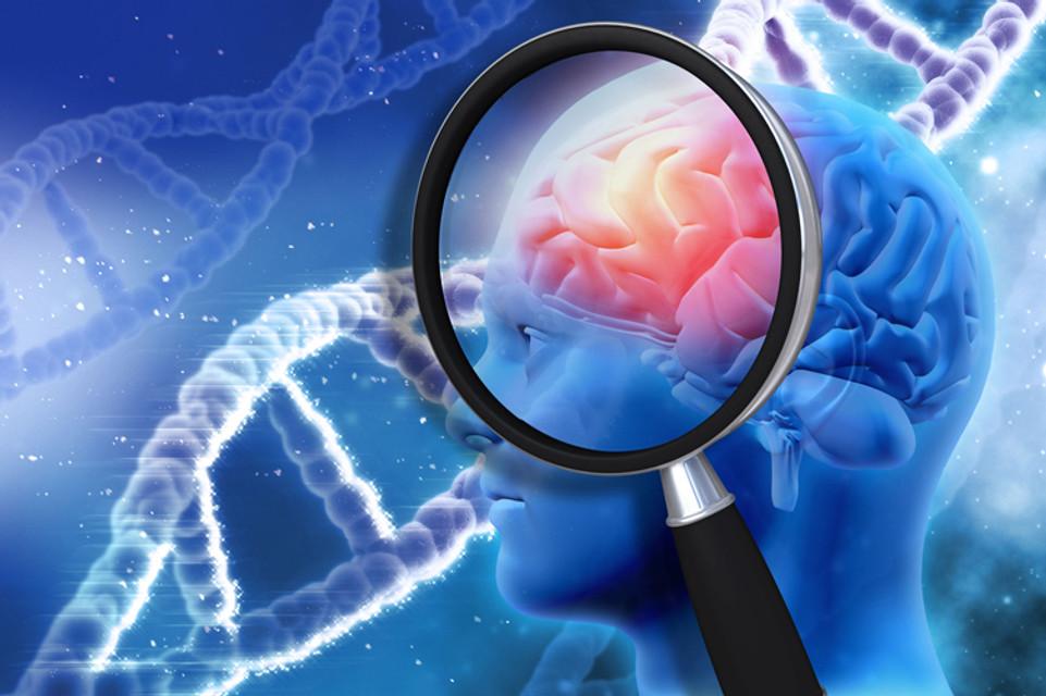 Alzheimer's: Preventable and Reversible