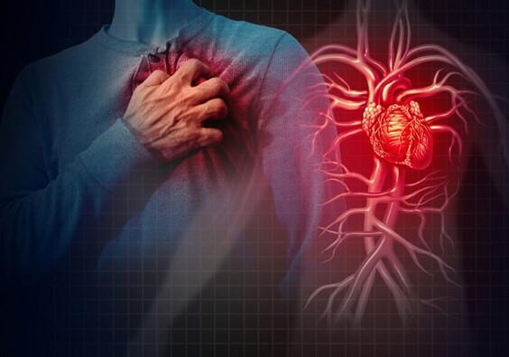 Curcumin and Heart Disease
