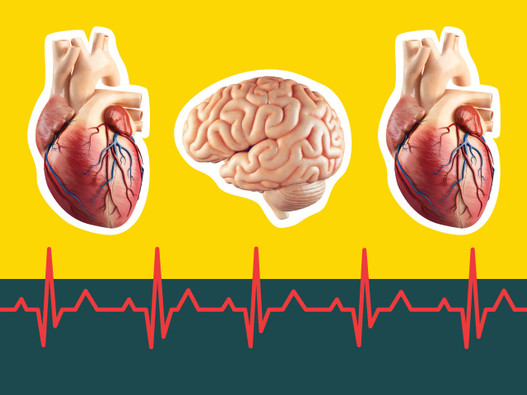 Prevent Heart Attacks and Strokes by Lowering Your Oxidized LDL