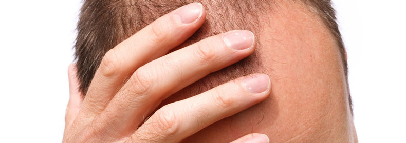 Hair Loss - Causes and Treatments