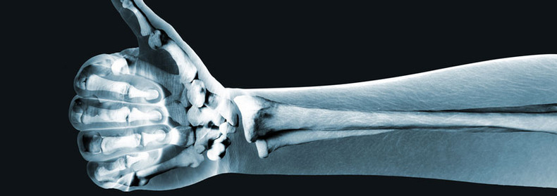 Important information about bone health supplements