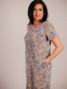 Soft t-shirt dress. Round neck with round keyhole detail; short sleeves; side seam pockets