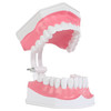 Axis Scientific Enlarged Teeth Care Model Mouth Open Side View
