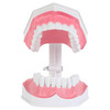 Axis Scientific Enlarged Teeth Care Model Open Mouth Front View