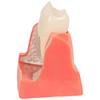 Axis Scientific Enlarged Dental Implant Anatomy Model