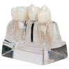 Axis Scientific Enlarged Transparent Dental Implant Anatomy Model