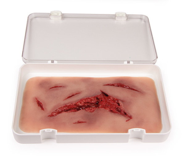 Skin Moulage, Large Laceration Wound - Bleeding