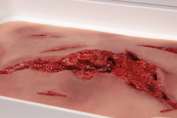 Skin Moulage, Large Laceration Wound - Bleeding 1