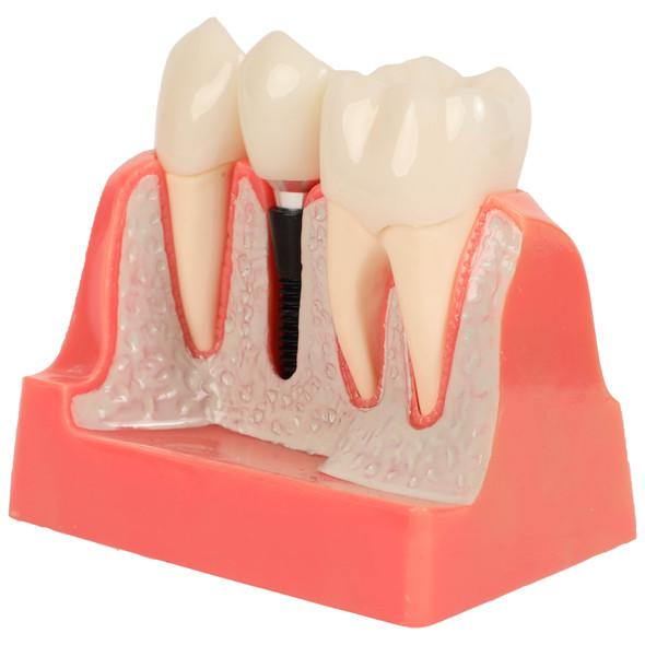 Axis Scientific Enlarged Dental Implant Anatomy Model 1