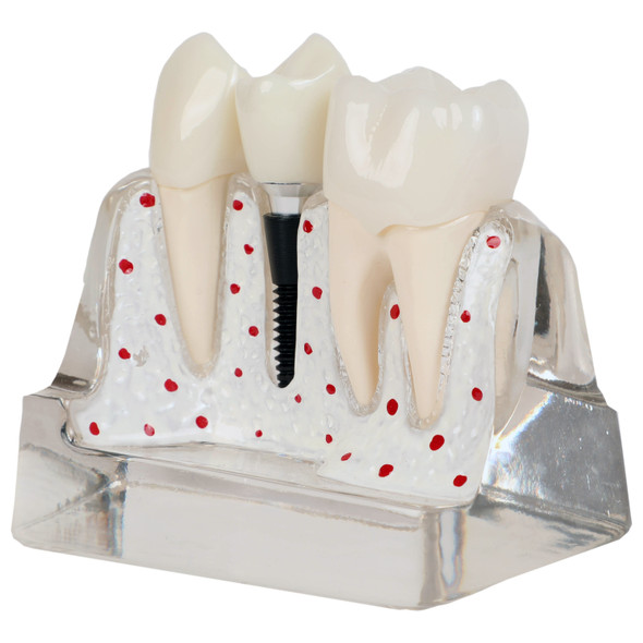 Axis Scientific Enlarged Transparent Dental Implant Anatomy Model 1