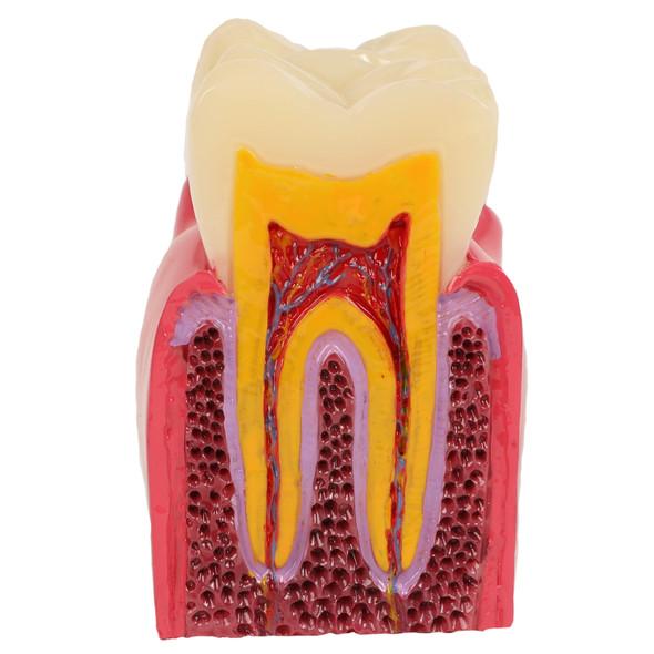 Axis Scientific Decayed Teeth Comparison Anatomy Model, 6x Life-Size