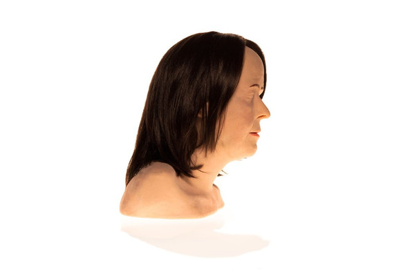 SimSkin Cosmetic Filler Training Model - Zsa Zsa - Right Side View of the Head and Shoulder 1