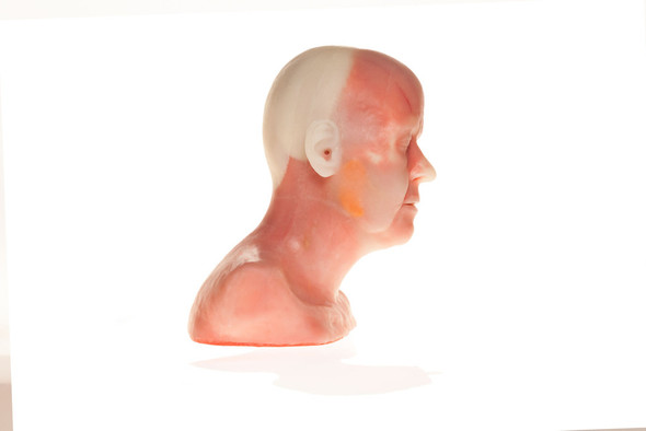 SimSkin Cosmetic Filler Training Model - Diaphanous Zsa Zsa - Right Side View of the Head and Shoulder 1