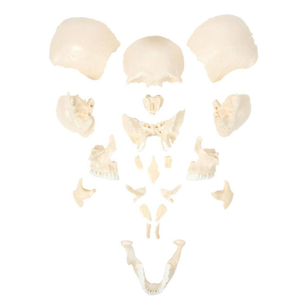 Axis Scientific 22-Part Disarticulated Life-Size Human Skull