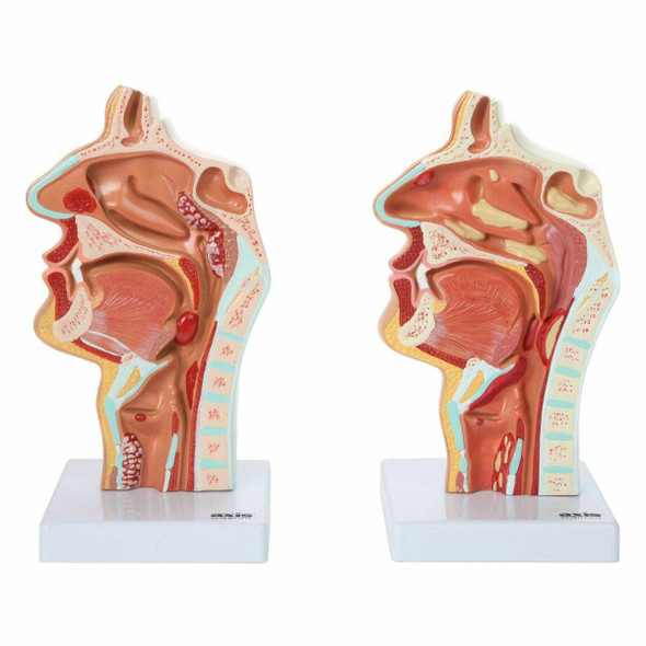Axis Scientific Larynx and Pharynx Disorders Model