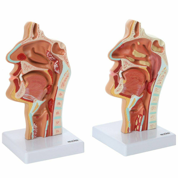 Axis Scientific Larynx and Pharynx Disorders Model 1