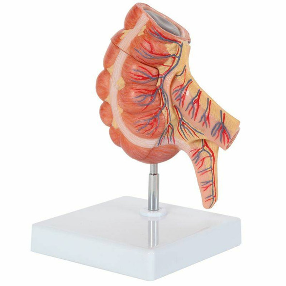 Axis Scientific Caecum and Appendix, Enlarged 1.5 Times Life Size 1