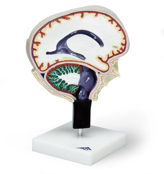 Cerebrospinal Fluid Brain Model