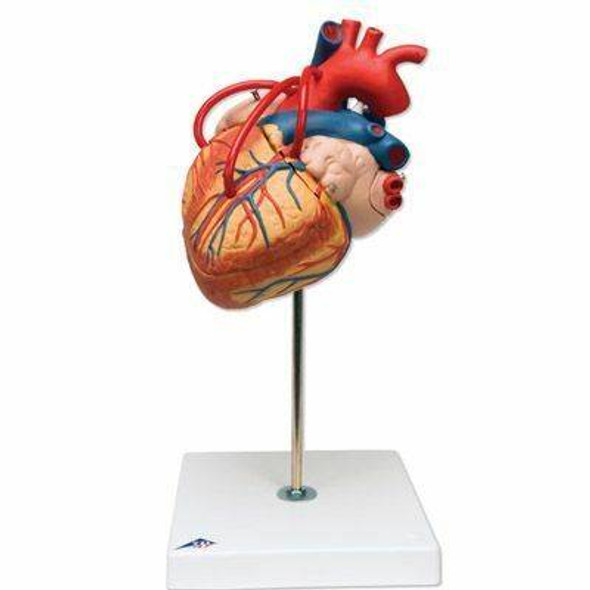 Human Heart Anatomy Model With Bypass