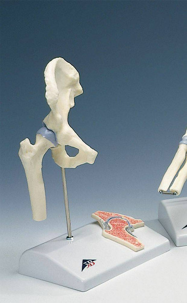 Mini Joint with Cross Section Anatomy Model Set 1