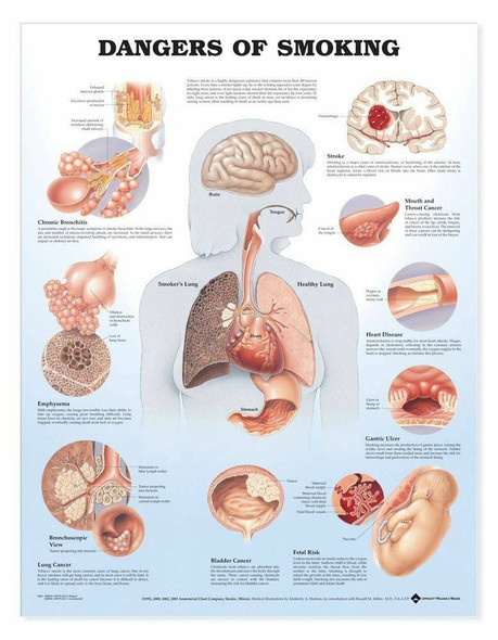 Dangers Of Smoking Laminated Anatomical Chart
