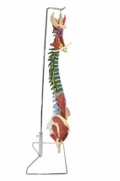 Budget Muscle Spine Anatomy Model with Disorders With Stand 1