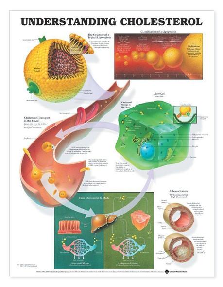 Understanding Cholesterol Laminated Anatomical Chart