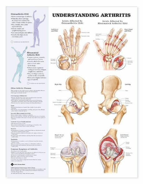 Understanding Arthritis Laminated Anatomical Chart