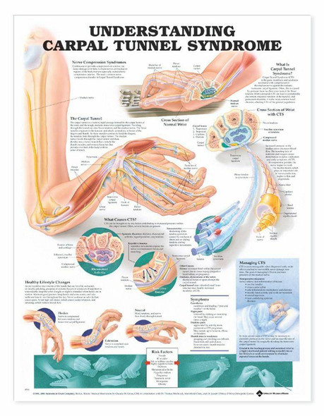 Understanding Carpal Tunnel Syndrome Laminated Anatomical Chart