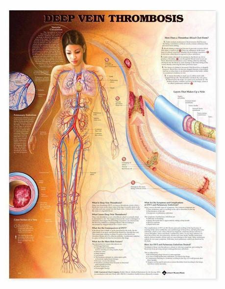 Deep Vein Thrombosis Laminated Anatomical Chart