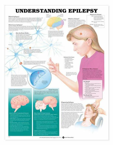 Understanding Epilepsy Laminated Anatomical Chart