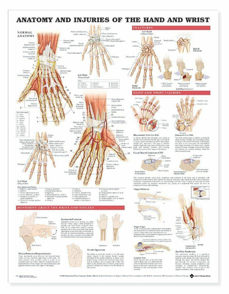 Anatomy and Injuries Of The Hand and Wrist Laminated Anatomical Chart
