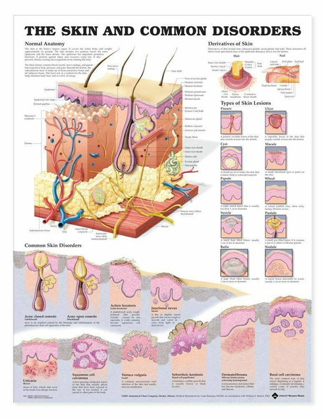 The Skin and Common Disorders Laminated Anatomical Chart