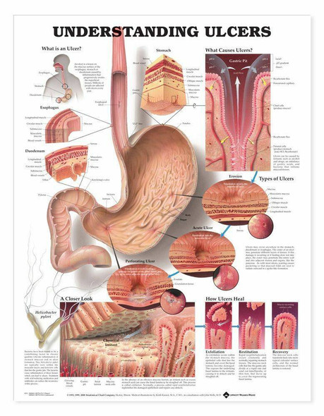 Understanding Ulcers Laminated Anatomical Chart