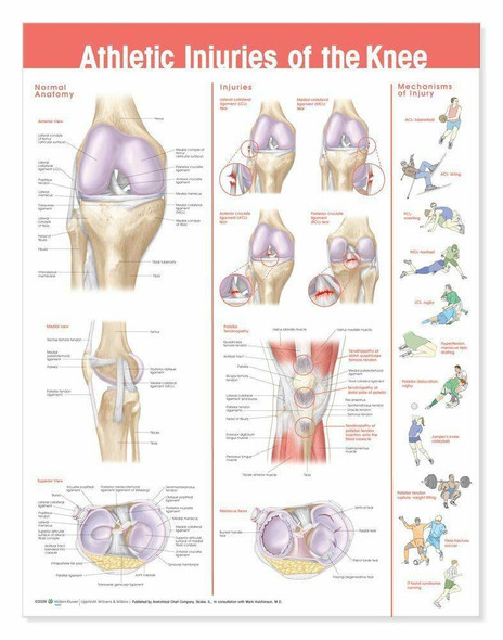 Athletic Injuries Of The Knee Laminated Anatomical Chart