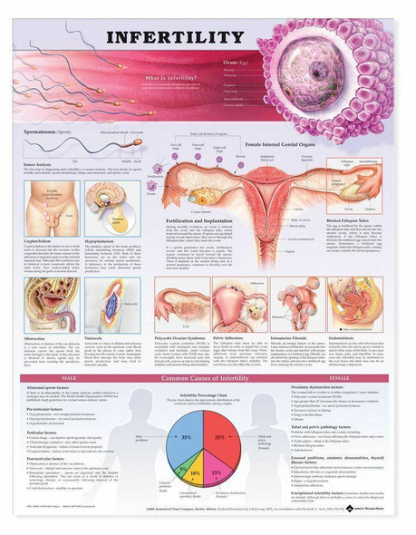 Infertility Laminated Anatomical Chart - 2nd Edition