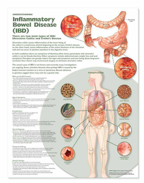 Inflammatory Bowel Disease IBD Laminated Anatomical Chart