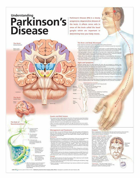 Understanding Parkinsons Disease Laminated Anatomical Chart - 2nd Edition
