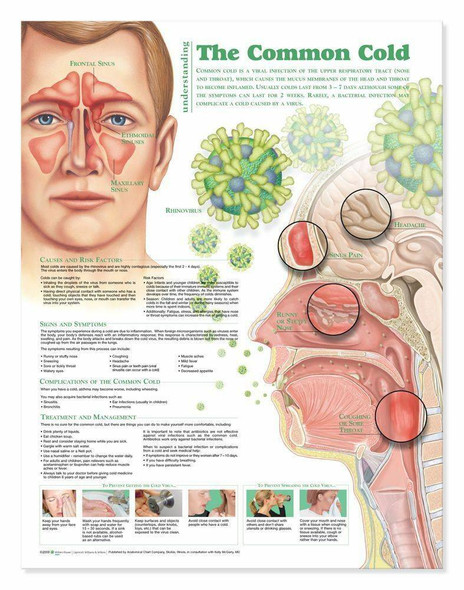 Understanding The Common Cold Laminated Anatomical Chart - 2nd Edition
