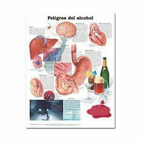 Dangers of Alcohol in Spanish Peligros del alcohol Laminated Anatomical Chart