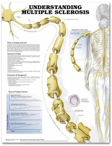 Understanding Multiple Sclerosis Laminated Anatomical Chart - 2nd Edition