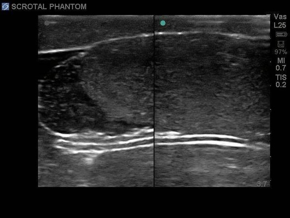 Scrotal Ultrasound Training Model 1