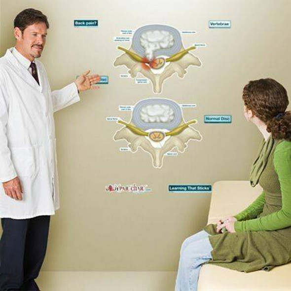 Prolapsed Disc Anatomy Dry-Erase Sticky Wall Chart - Labeled