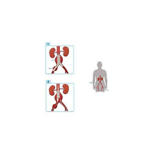 Endovascular Repair Anatomy Dry-Erase Sticky Wall Chart - 27 in x 40 in