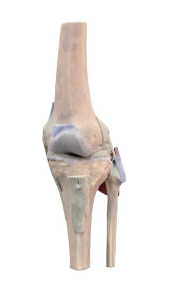 3D Printed Knee Joint Extended