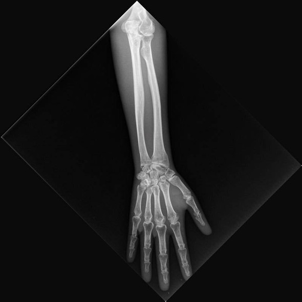 X-Ray Phantom Lower Arm, Transparent 1