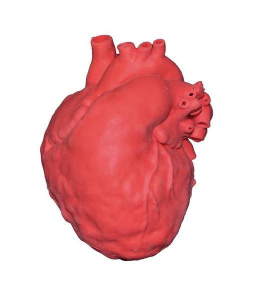 Pediatric Heart With Atrial Septal Defect ASD
